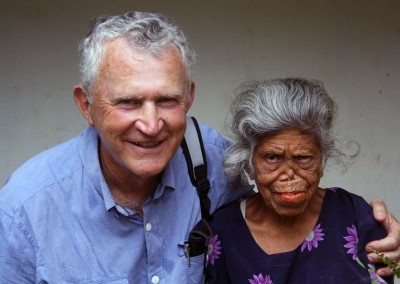 Bob with leprosy patient Noab